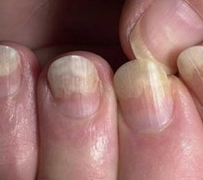 Грибок на пальце чем лечить в домашних условиях 42