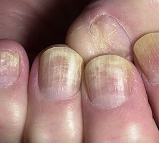 Шелушится кожа на руках под ногтями