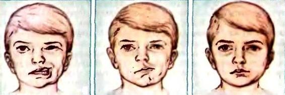 воспаление лицевого нерва симптомы фото