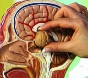 Аденома гипофиза симптомы диагностика и лечение опухоли