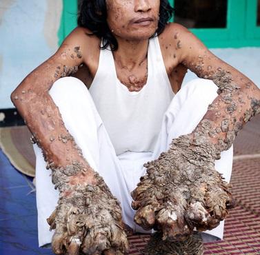 папилломы у женщин фото лечение