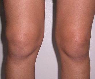 Дефигурация сустав врожденный вывих коленного сустава операция