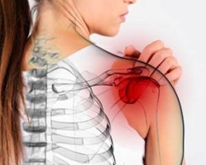 Периартрит - симптомы и лечение