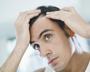Алопеция - симптомы у мужчин, лечение