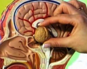Аденома гипофиза - симптомы, лечение