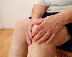 Как диагностировать и лечить артрит коленного сустава