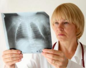 Воспаление легких - симптомы у взрослых, лечение