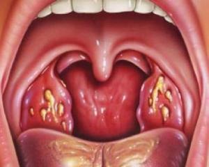 Тонзиллит симптомы фото лечение Как лечить тонзиллит у