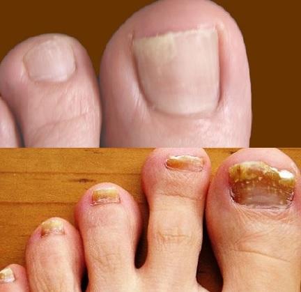 Грибок ногтей на ногах и руках: виды, стадии