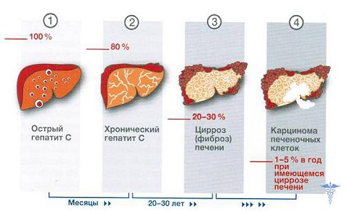 Гепатит С сколько с ним живут, статистика продолжительности жизни