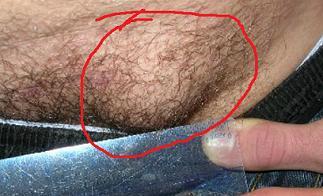 Симптомы паховой грыжи: все характерные признаки