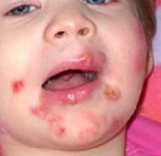 Стрептодермия: симптомы у детей и взрослых, лечение, фото