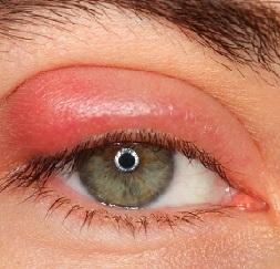 Капли для лечения ячменя на глазу в домашних условиях